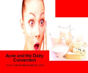 Acne And Its Dairy Connection
