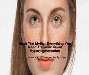 Bash The Myths: Everything You Need To Know About Hyperpigmentation