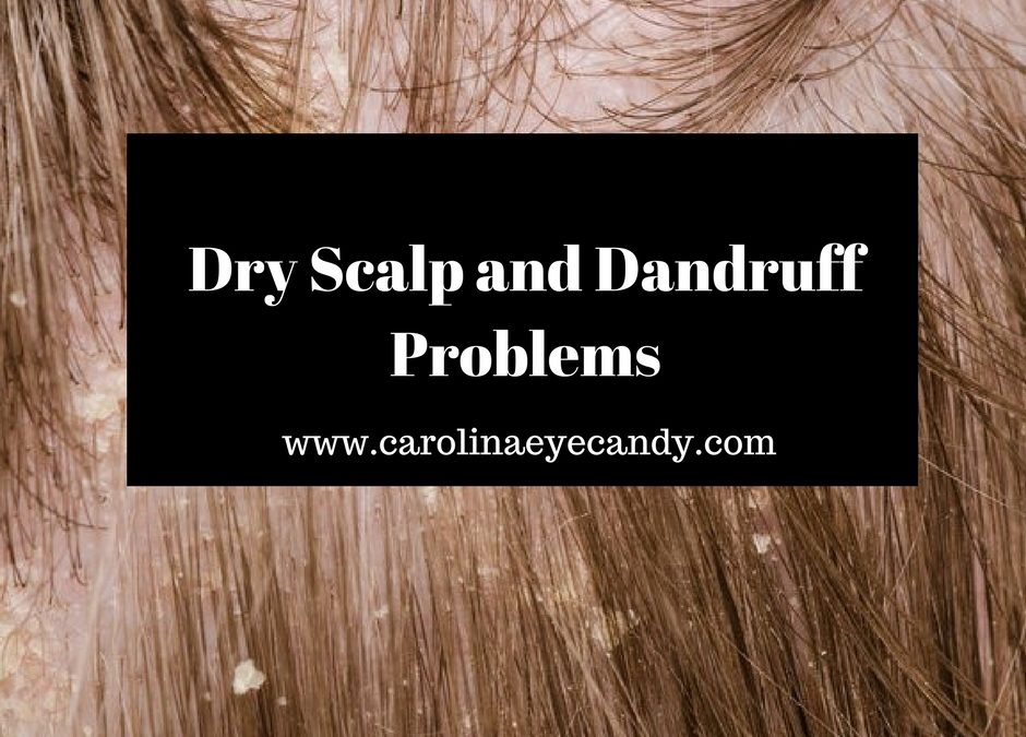 Dry Scalp And Dandruff Problems