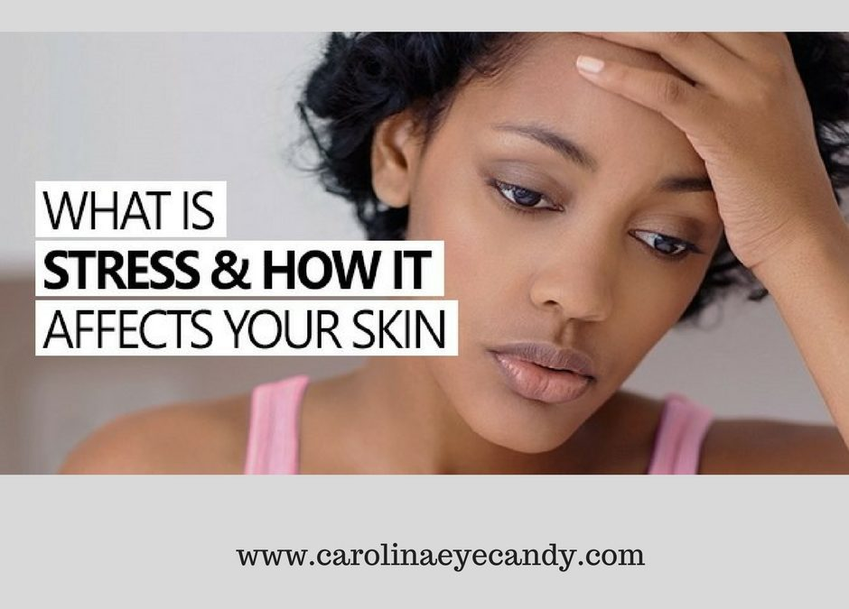 How To Avoid Skin Stress: Causes, Signs and Symptoms, & Beauty Tips